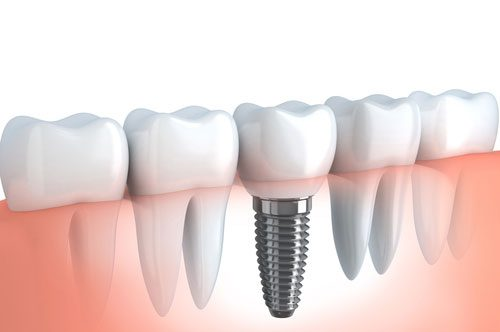 Dental Implants For When Your Smile Has Gotten Bad