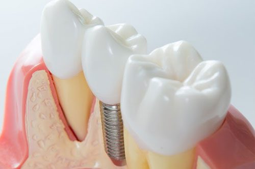 Dental Implants Look, Feel, And Function Like Your Own Teeth
